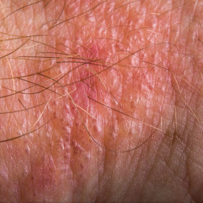 How to Prevent Poison Ivy Rash and Live to Tell
