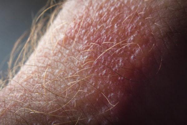 How Does Poison Ivy Rash Spread