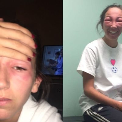 What to Do When Poison Ivy Gets in the Eye?