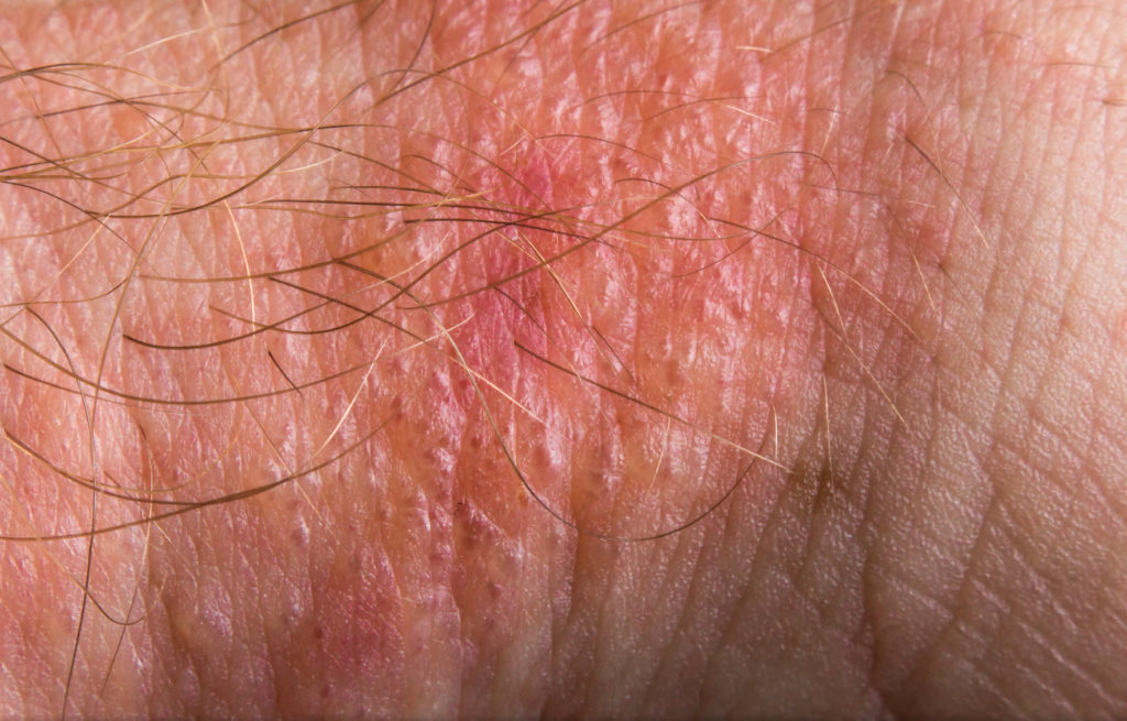 Images of poison ivy rash on skin